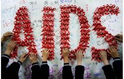 13195 small kasus hiv aids pada anak