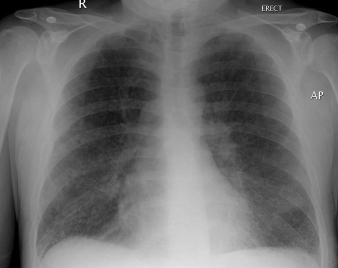 23053 medium cara mencegah penularan tbc
