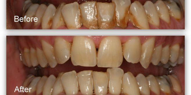 23065 medium 657x328 cara mudah usir karang gigi dengan bahan rumahan 1509288