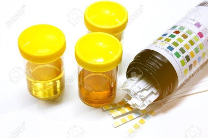 25937 medium 80808188 urine sample with reagent strip for urinalysis in laboratory