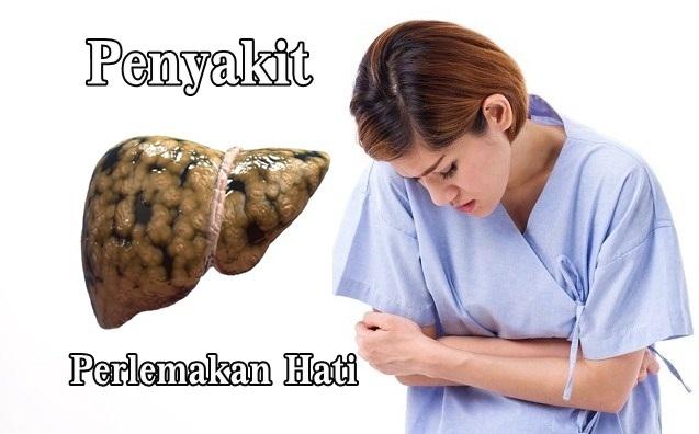 41518 medium obat perlemakan hati herbal