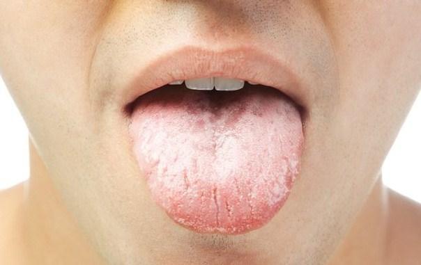 41919 medium cara mengatasi kanker lidah secara alami