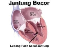 41953 small jantung bocor