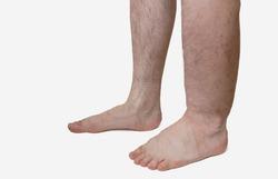 41956 small obat penyakit kaki gajah tradisional