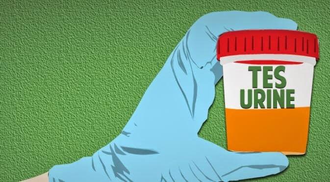 4255 medium hasil tes urine  308 pelajar positif narkoba