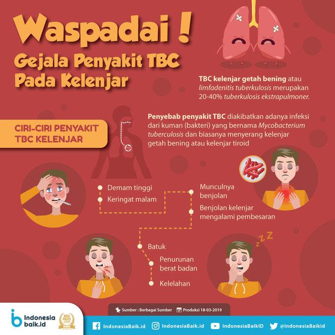 55941 medium waspadai! gejala penyakit tbc pada kelenjar