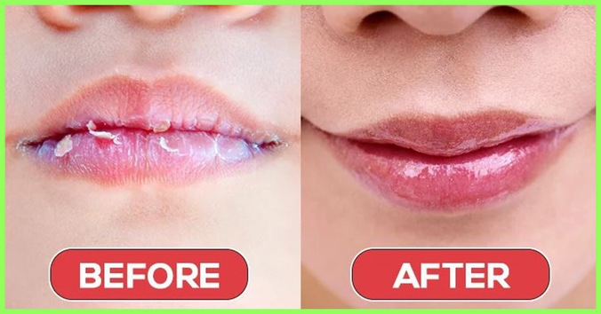 60373 medium cara mengatasi bibir kering saat puasa