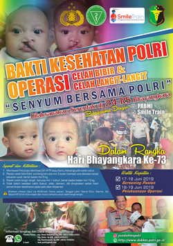 63812 small poster bakti kesehatan polri bibir sumbing 2 1